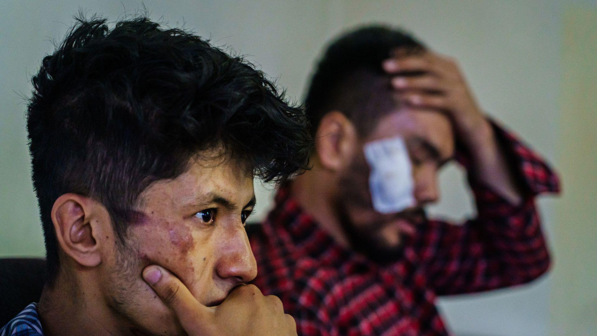 """Doi jurnaliști afgani descriu bătăile primite de la talibani: """"Am crezut că acesta e sfârșitul vieții mele"""""""